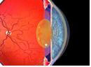 cataracts_image